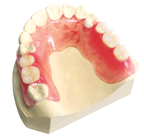 Comflexin - Flexible Partial Denture